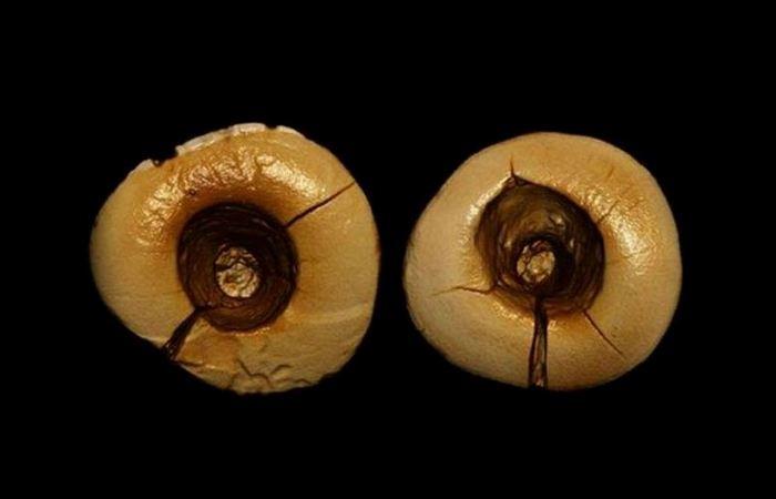 Каменный век: стоматологические процедуры.